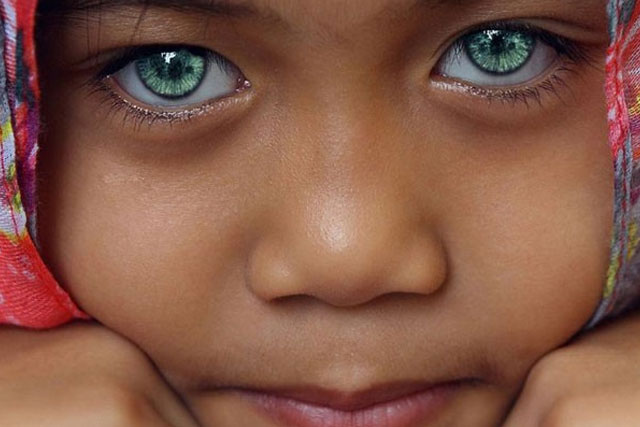 6. Unique eye color