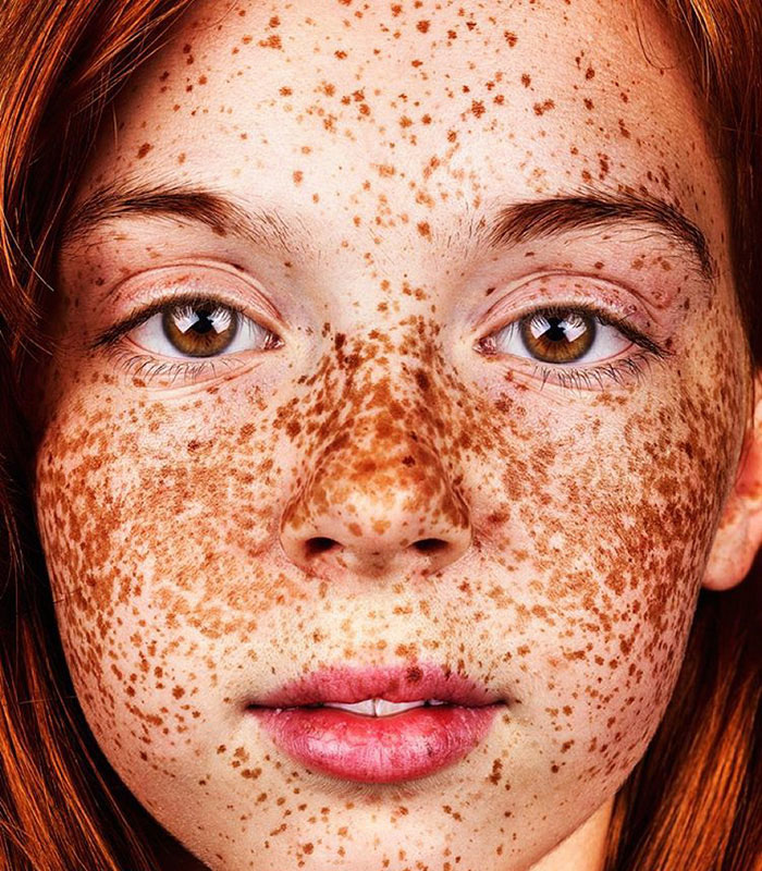 Freckles everywhere