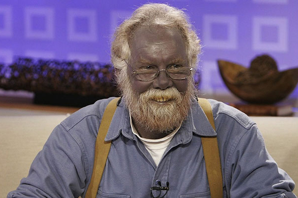 Paul Karason; The Smurf man
