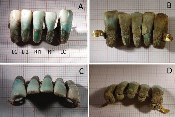 Very medieval dental prostheses